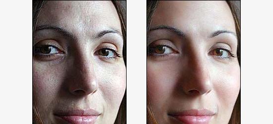 Эффект улучшения кожи