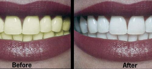 Станьте хорошим дантистом