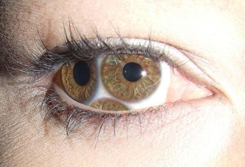 Преломленный глаз